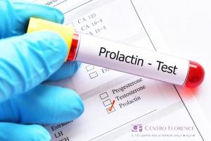 La mano guantata di un medico tiene una fialetta con il test per i livelli di prolattina