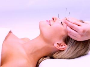 una donna rilassata durante una sessione di agopuntura